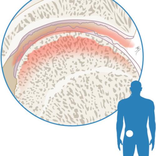 atrorse-artritis